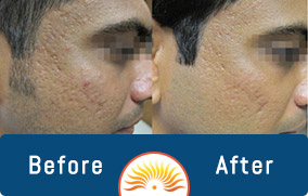 Fractora Non-Invasive Facelift Near Me in Cary, NC