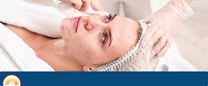 Chemical Peel for Acne Scars Near Me in Cary, NC