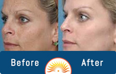 Before & After Photos of Medical Weight Loss and Aesthetic Service Patients in Cary, NC
